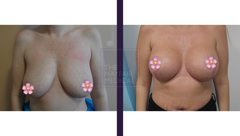 breast uplift before and after - 3