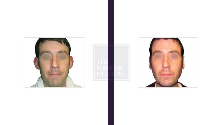 otoplasty-before and after 2