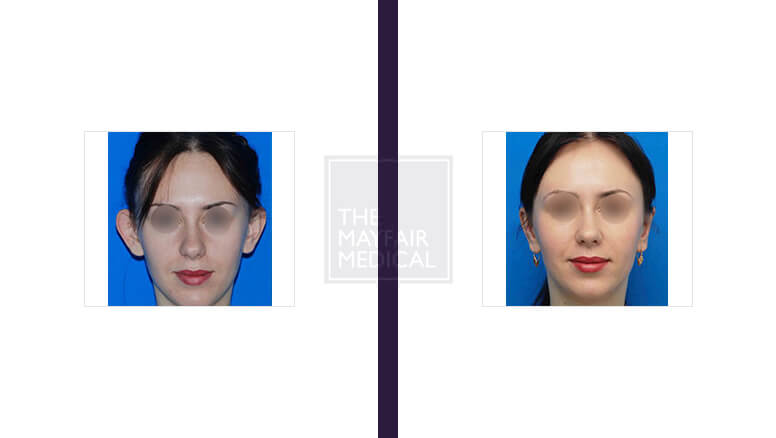otoplasty-before and after 3