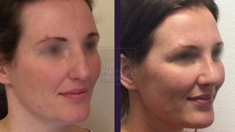 rhinoplasty-before and after 2