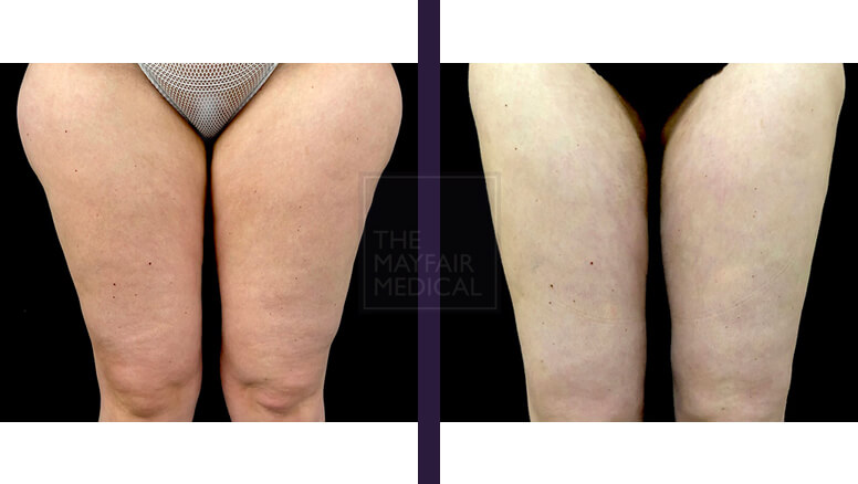 thigh lift - before and after