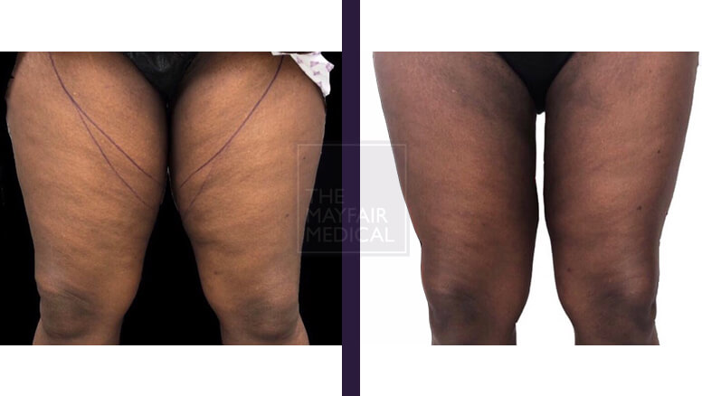 thigh lift - before and after 2