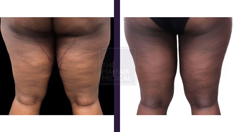 thigh lift - before and after 3