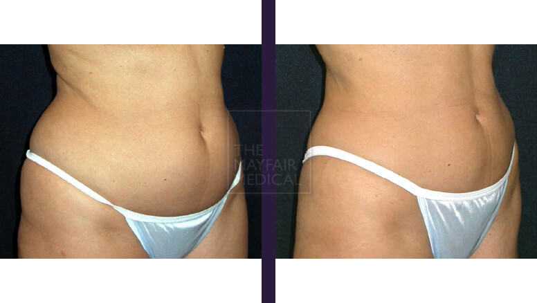 tummy tuck - before and after