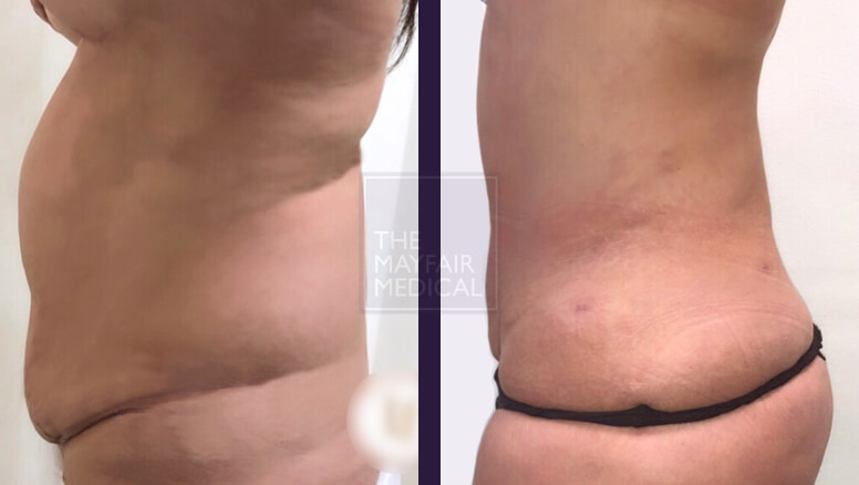 vaser liposuction-before and after 1
