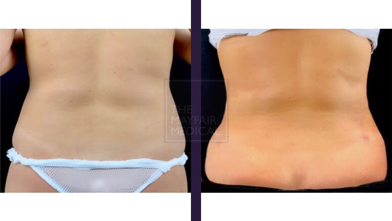 vaser liposuction-before and after 3